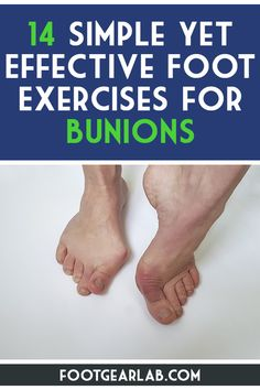 When the exercises are performed regularly, they ensure your joints are in the right positioning while also keeping your muscles strong and resisting formation of bunions. Here are 14 Simple Yet Effective Foot Exercises for Bunions. Bunion Remedies, Foot Remedies, Bunion Exercises, Shin Splint Exercises, Shin Splints, Bunion Relief, Pain Relief, Get Rid Of Bunions, Yoga Workouts