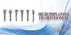Microimplantes de ortodoncia  orthodontic micro-implants