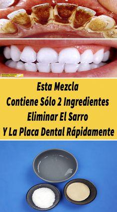 Oral Health, Health Tips, Perfect Smile, Tapas, White Teeth, Dental Care, Teeth Whitening, Hot Dog Buns, Natural Remedies