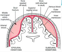 Difference between an Epidural Hematoma and a Subdural Hematoma