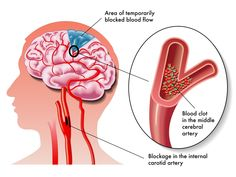 10 'Eerie' Symptoms Which Indicate That You Had A Silent Stroke And That Another One Will Soon Follow