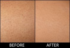 How to Get Rid of Keratosis Pilaris (or Chicken Skin) for Good!