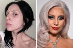 (Shown: Lady Gaga) Celebrities Without Makeup 32 celebs without makeup (Shown: Lady Gaga) Celebrities Without Makeup 32 celebs without makeup lady gaga Close-Up Hair See Makeup Tutorials That Lady Gaga Without Makeup, Celebs Without Makeup, With And Without Makeup, Celebrity Makeup Transformation, Amazing Makeup Transformation, Get Rid Of Spots, Makeup Before And After, Celebrities Before And After, Celebrity Plastic Surgery