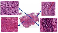 The center image is a whole-slide image of a Glioblastoma Multiforme tumor and the arrows indicate enlarged, distinct regions. Scientists have developed an automated way to analyze large sets of tumor images, which may help predict responses to cancer therapy.