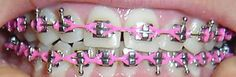 Cute Girls With Braces, Cute Braces Colors, Kids Braces, Dental Braces, Teeth Braces, Power Chain Braces, Braces Tips, Brace Face, Beautiful Smile
