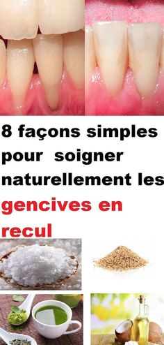 Looking for iron-rich foods or wondering if you're deficient or not? This article will help you discover the most iron-rich foods on Herbal Remedies, Home Remedies, Natural Remedies, Fingernail Health, Home Remedy For Headache, Safe Cosmetics, Healthy Eating Guidelines, Tomato Nutrition, Coconut Health Benefits