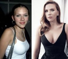 10 celebrities who actually look better after plastic surgeries