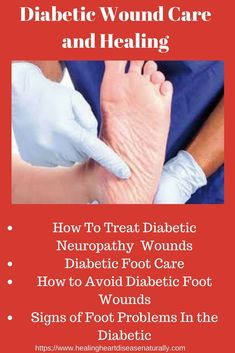 Diabetic foot wounds and pain are a complication of diabetes. Therefore, it is important for diabetics to have good quality foot care. In order for diabetics to protect their feet, they must have a good diabetic shoe. The pain is from peripheral neuropath Cardiac Nursing, Peripheral Neuropathy, Diabetic Neuropathy, Cure Diabetes Naturally, Healing Heart, Wound Care, Diabetes Treatment, Foot Pain, Natural Home Remedies
