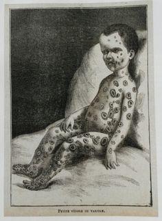 Child with smallpox, 1860.