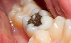 (Zentrum der Gesundheit) - Zahnfüllungen aus Amalgam bestehen zu 50 Prozent aus giftigem Quecksilber. Es gibt kaum eine Krankheit, die von Quecksilber nicht ausgelöst oder verstärkt werden könnte. Die Entfernung des Amalgams ist folglich eine dringend notwendige Massnahme für alle, die bereits Gesundheitsbeschwerden haben, aber auch für alle, die für die Zukunft keinen Wert auf die Folgen einer chronischen Quecksilbervergiftung legen. Wie eine ordnungsgemässe Entfernung von Amalgam und eine…