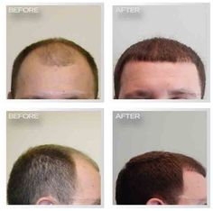 11 Best Best Hair Transplants In Stuart Florida Images On Pinterest