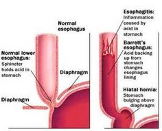 Esophagitis and Stricture