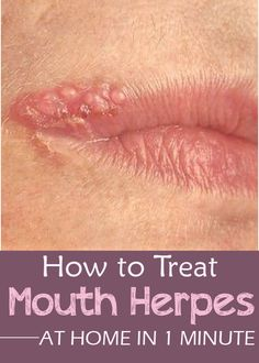 How to Treat Mouth Herpes at Home in 1 Minute