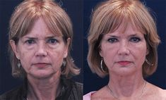 Regenerate sagging face skin and beat wrinkles with face training exercises and acupressure rubbing solutions. The combination is a powerful way to smooth out face wrinkles and raise loose facial skin for a more youthful look.