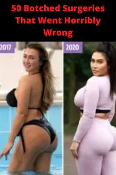The cosmetic surgery industry thrives on making money off of people who feel bad about themselves. But, hey, if they're happy with the end result then more power to them and their self-esteem!