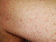 Visszeres lábfájdalom: tünetek, diagnózis és kezelés - Orvosok
