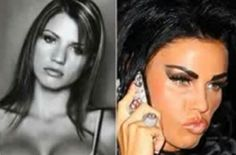 Before and After Plastic Surgery - Katie Price