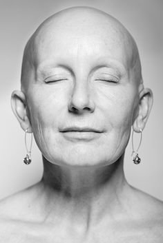 Alopecia by Daniel Regan: A long-term photographic portrait project of people affected by the autoimmune hair loss condition alopecia. The condition causes partial or total hair loss (eyebrows & lashes too) for unknown reasons & can affect people of all ages, backgrounds & genders. Hair regrowth may never occur. Shame is associated with alopecia, especially for women. Parts of the body that epitomize femininity in our society, are lost. Participants were photographed as they chose to be