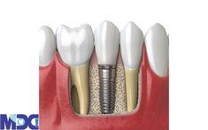 ایمپلنت دندان چیست؟ ایمپلنت دندان قطعه ای از جنس تیتانیوم است که بر روی استخوان فک متصل میشود و جنس آن طوری است که مانع از زنگ زدگی آن شود. ایمپلنت جایگزین دندان اصلی فرد میشود. کاشت دندان انواع متفاوتی دارد که ایمپلنت بهترین و مناسب ترین جایگزین دندان طبیعی است. در کلینیک دندانپزشکی مدرن از این روش و همچنین روش ایمپلنت دیجیتال استفاده می شود. بخش های ایمپلنت دندان 1-قسمت پایه یا فیکسچر 2-قسمت تاج یا پروتز ایمپلنت Dental Implants, Lipstick, Beauty, Lipsticks, Beauty Illustration
