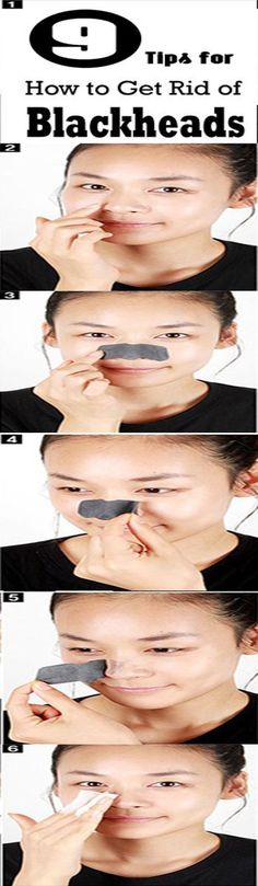 Tips for How to Get Rid of Blackheads