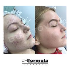 Excellent acne skin resurfacing results from our pHformula skin specialists in Russia. Thank you for sharing these great results Skin Resurfacing, Skin Specialist, Acne Skin, Russia, Face, Faces, Facial
