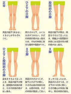 足のゆがみを放置すると、腰痛や肩コリ、首の痛みといった体の不調も。原因と対策を学び、早いうちに治しましょう。