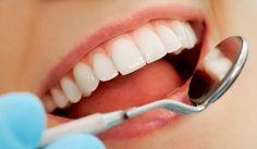 RETETE NATURISTE: Cum sa vindeci cariile dentare in mod natural