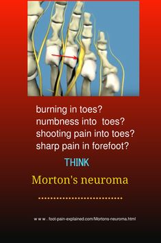 Morton's neuroma is a pinched nerve occurring in forefoot, that will cause pain in the forefoot that generally will radiate into the toes. Skeleton Muscles, Human Skeleton, Morton's Toe, Morton's Neuroma, Musculoskeletal System, Nerve Pain, Foot Pain, Plantar Fasciitis