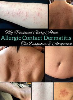 My Personal Story Of Allergic Contact Dermatitis – Diagnosis And Acceptance [Part - Heather Mangieri Nutrition Itchy Skin Rash, Contact Dermatitis, Cozy Living, Acceptance, Good To Know, Allergies, Healthy Living, Fragrance, Advice