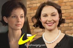 Ashley Judd of all people...Why? Now she has pillow face :(
