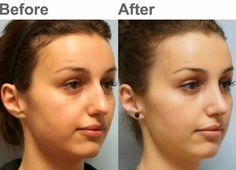 Facial Plastic Surgery: Cosmetic rhinoplasty, Dorsal hump, Tip rotation