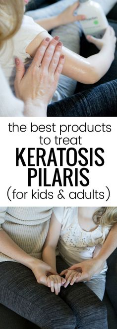 AmLactin products are amazing for treating keratosis pilaris in adults and children! #ad