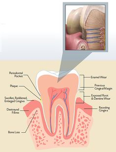 A guide to managing sensitive teeth from Norfolk Dental Specialists.  A Norwich Dentists in the UK