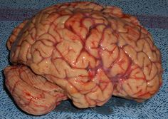 A real brain with a good view of the cerebral tonsils: the bulging butt hanging out the back in the bottom left corner. This is the portion squished into the brain stem when a person has a #Chiari Malformation