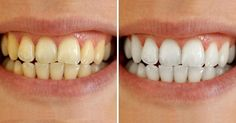 Look at the difference! Schedule a whitening with us today
