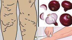 Varicele sau venele varicoasesunt vene largi, proeminente, palpabile si vizibile la suprafata pielii, localizate la nivelul coapsei si al gambei. Alte forme de vene varicoase sunttelangiectaziile si venele reticulate. Ele nu dau simptome, iar tratarea lor e de ordin cosmetic. Telangiectaziil Varicose Vein Remedy, Varicose Veins, Natural Treatments, Natural Remedies, Good To Know, Health And Beauty, Diy And Crafts, The Cure, Flora