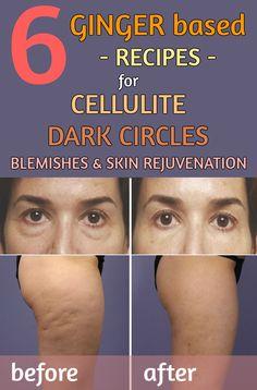 6 ginger based recipes for cellulite, dark circles, blemishes and skin rejuvenation - 101BeautyTips.org