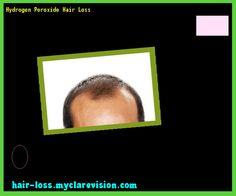 Hydrogen Peroxide Hair Loss 143122 - Hair Loss Cure!