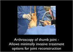 Restriction cmc cool splint thumb comfort
