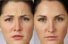 Before and after photos of Botox injection. Call our office today to schedule your appointment (503)297-6511 wwwportlandfacedoctor.com