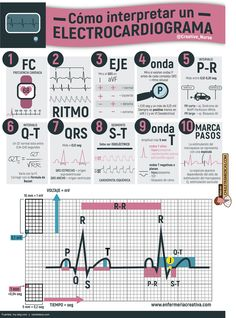 Cómo interpretar un electrocardiograma Como interpretar un ECG para enfermería Med Student, Medical Facts, Medical Science, Medicine Notes, Cardiac Nursing, Nursing Notes, Veterinary Medicine, Med School, Anatomy And Physiology