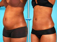 Board certified female plastic surgeon in Lutherville - Baltimore Michele Shermak MD can help. Cosmetic surgery procedures breast augmentation, liposuction, tummy tuck and full body tightening after weight loss. Before And After Liposuction, Liposuction Cost, Tummy Tuck Before After, Colon, Step Workout, Lose Weight, Weight Loss, Tummy Tucks, Juice Recipes