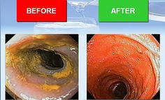 This is the colon of a person who was suffering from constipation. The before picture is showing the state of the colon prior to using Kangen Water. The after picture shows how the colon was cleansed after the use of the Kangen Water after just 90 d http://www.amazon.com/gp/product/B00HBF0NFO/?tag=usanew-20 colon cleanse