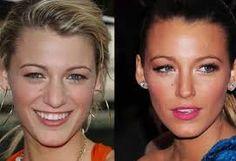 blake lively Celebrity Makeup, Celebrity News, Blake Lively Nose, Blake Lovely, Colourpop Eyeshadow, Celebrity Plastic Surgery, Under The Knife, Celebs, Celebrities