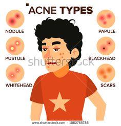 Boy With Acne.