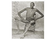 John 'Bud' Rogan (1868-1905) of Tennessee was the second tallest man in history at 8' 9''. His abnormal growth started at age 13 and he became unable to walk a few years later. He got around with a goat cart and was known for his extremely deep voice and playful attitude. He was 300 lbs at one time but had wasted to 175 lbs by the time of his death at age 37.