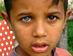 Heterochromia Iridium Is Thought To Result From An Alteration One Of The Genes That Controls