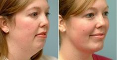 """Here is a pretty useful video which can help you to get rid of a double chin. It can also help with toning loose skin. It is all about the technique called """"natural face lift"""". Watch the video and . Double Chin Exercises, Neck Exercises, Facial Exercises, Stretches, Toning Exercises, Fitness Workouts, Tighten Loose Skin, Natural Face Lift, Chin Up"""