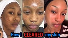 Black Marks On Face, How To Fade, Mask For Dry Skin, Acne Marks, Lighten Skin, How To Get Rid Of Acne, Dark Skin, Topical Retinoids, Skin Food