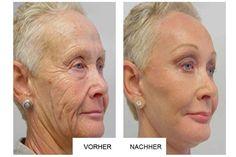 Oma überrascht Deutschland mit Ihrer neuartigen Anti-Aging Methode: Erstaunliche Resultate bereits nach 14 Tagen!